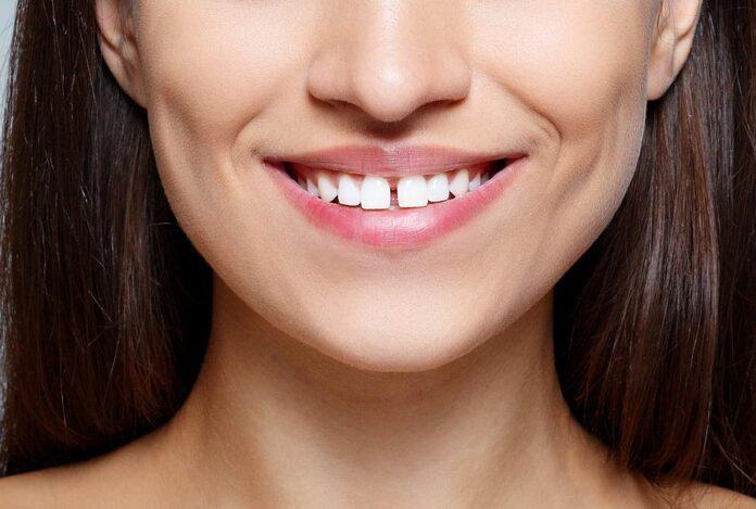 Teeth Gap Band